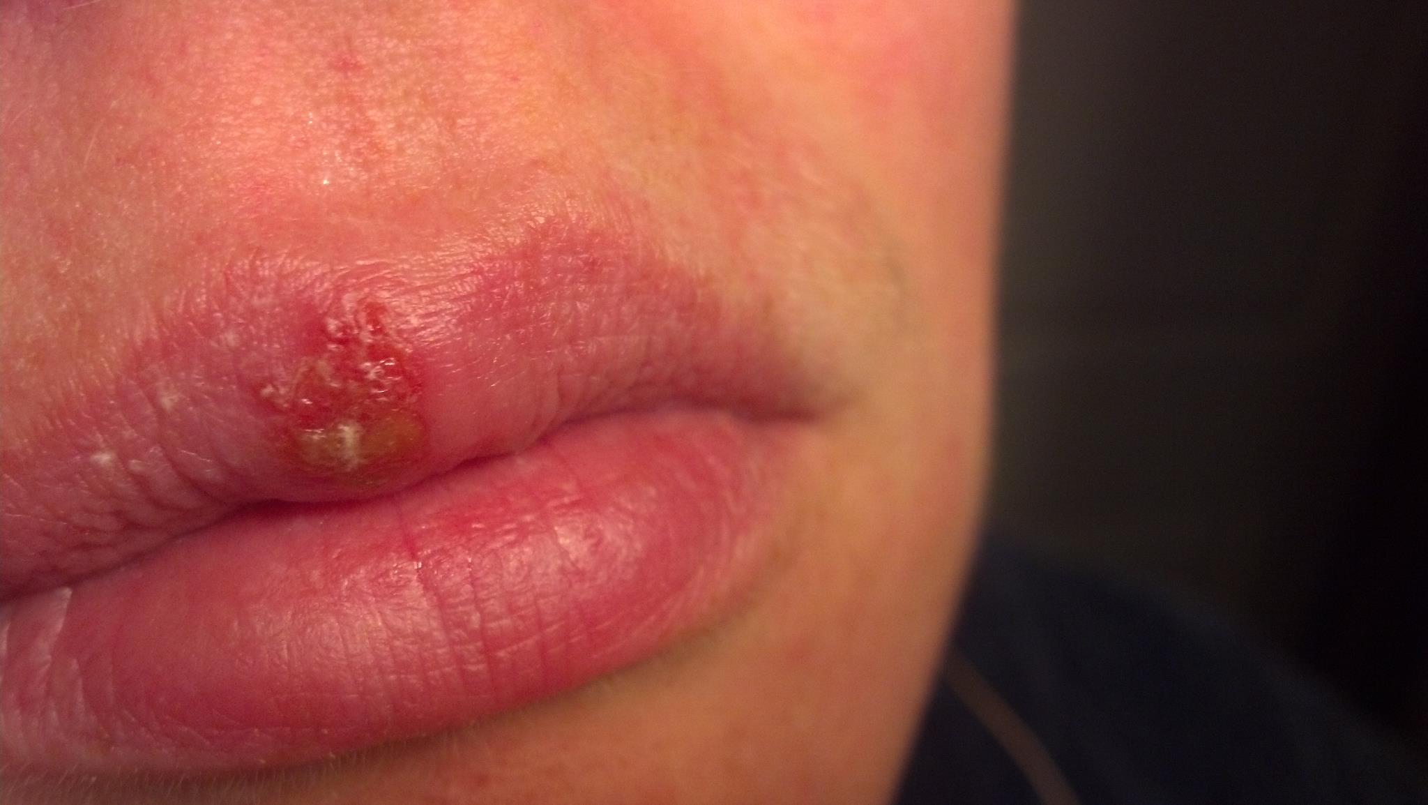 cold sore image #11