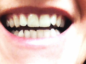 Anticipation of a new smile