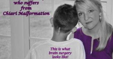 This Is What Brain Surgery Looks Like: Why Purple Makes Me Cry www.herviewfromhome.com
