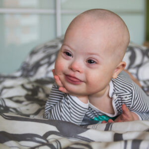 The Biggest Thing You Need To Know About Down Syndrome