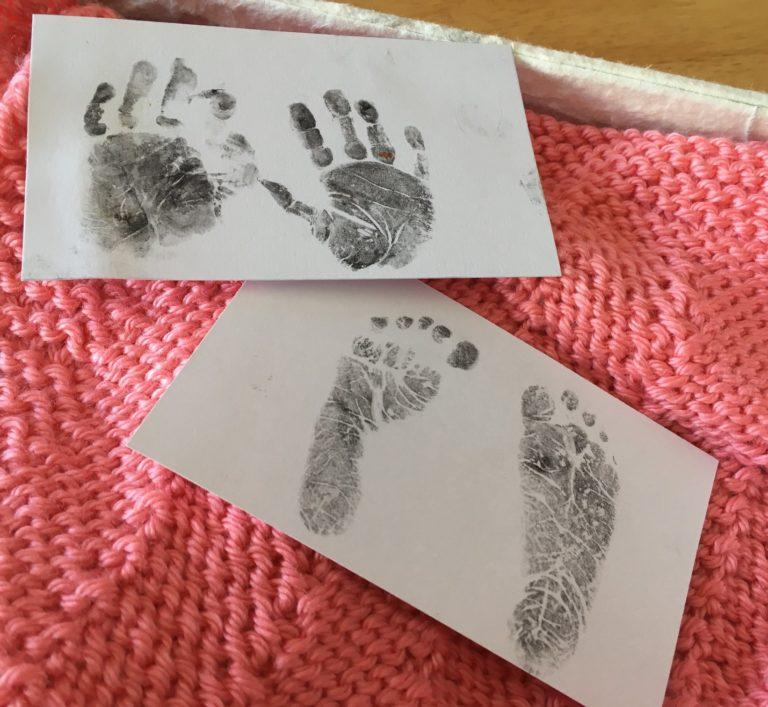 Hands and footprints of a stillborn baby