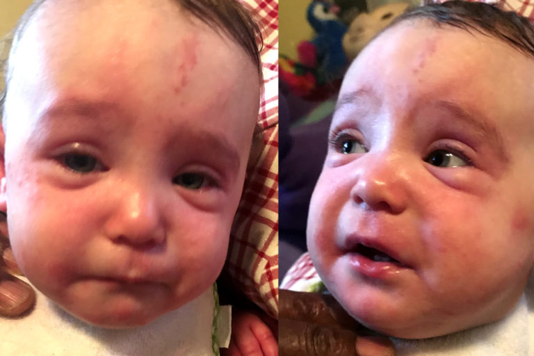 Child with severe food allergies shown having reaction