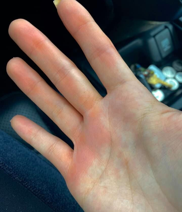 Red hand by steering wheel