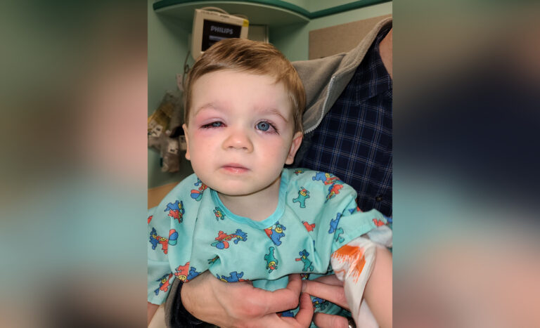 Toddler with eye infection
