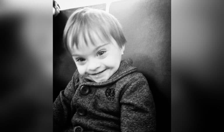 Toddler with Down syndrome smiling