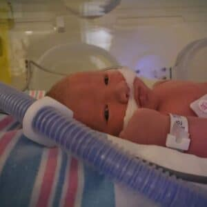 Having a Premature Baby Breaks a Mother's Heart